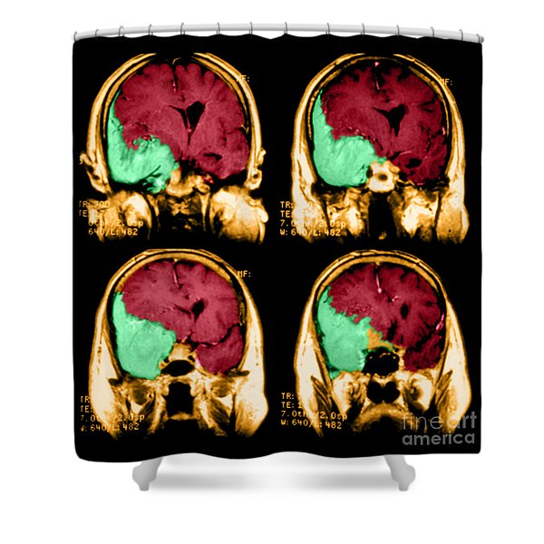 Meningioma Shower Curtain