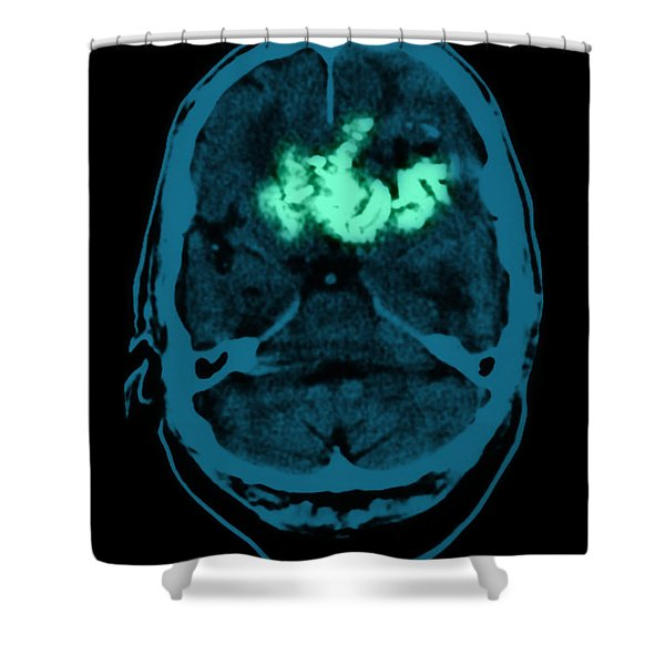 Oligodendroglioma Shower Curtain