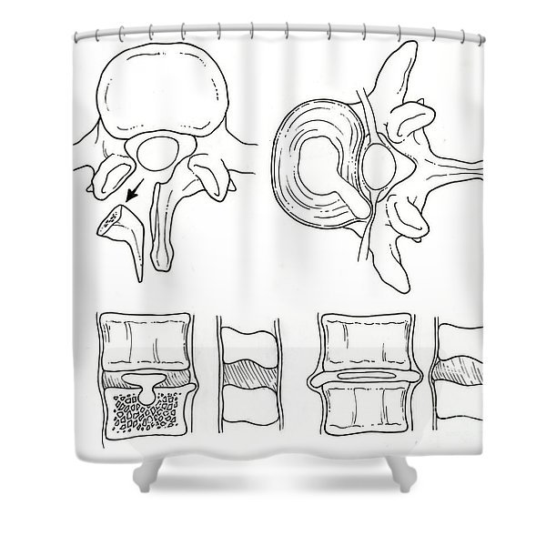 Illustration Of Spinal Disk Pathologies Shower Curtain