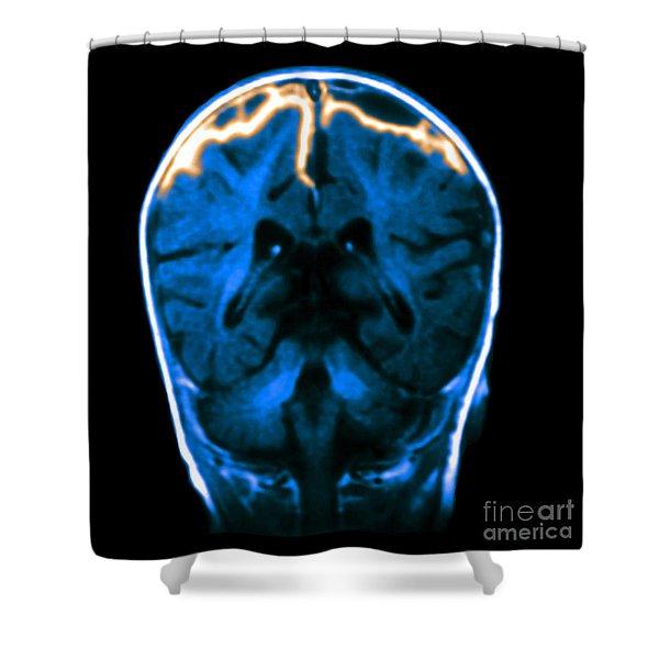 Mri Of Meningitis Shower Curtain
