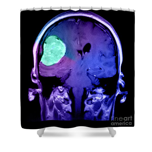 Right Sided Meningioma Shower Curtain