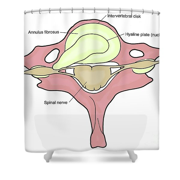 Illustration Of Herniated Spinal Disk Shower Curtain