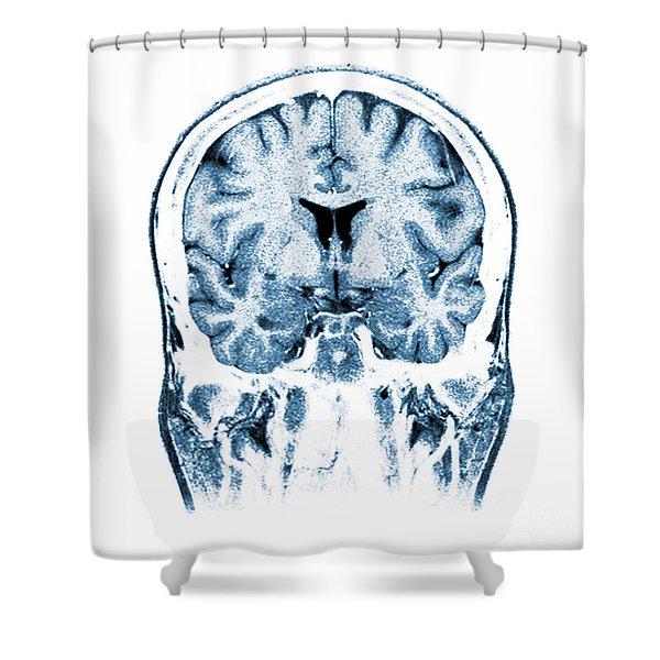 Normal Coronal Mri Of The Brain Shower Curtain
