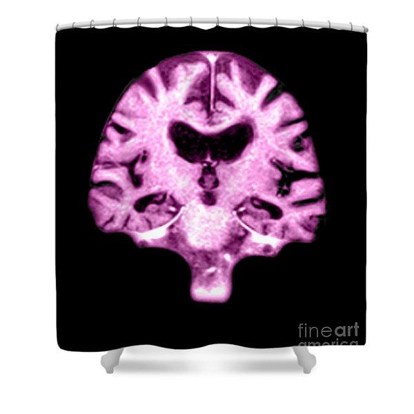 Mri Of Brain With Alzheimers Disease Shower Curtain