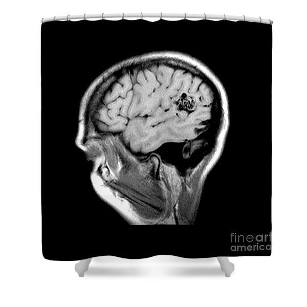 Mri Of Brain Avm Shower Curtain