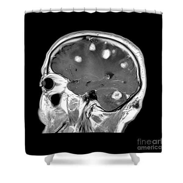 Brain Tumors Shower Curtain
