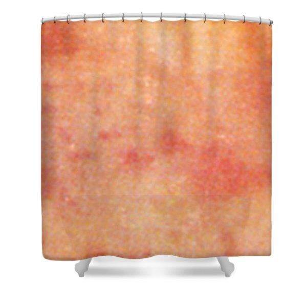 Acute Psoriasis Shower Curtain