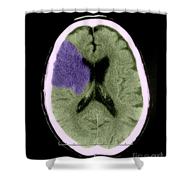 Ct Of Stroke Shower Curtain