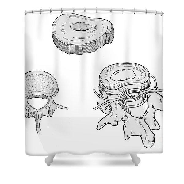 Illustration Of Spinal Disks Shower Curtain