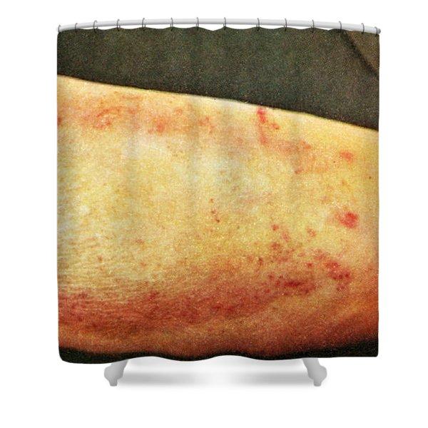 Lichen Simplex Chronicus Shower Curtain