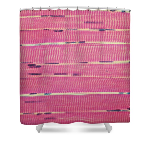 Lm Of Longitudinal Section Of Skeletal Shower Curtain