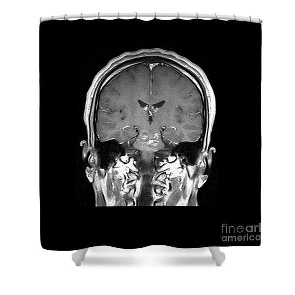 Mri Brainstem Cavernous Malformations Shower Curtain