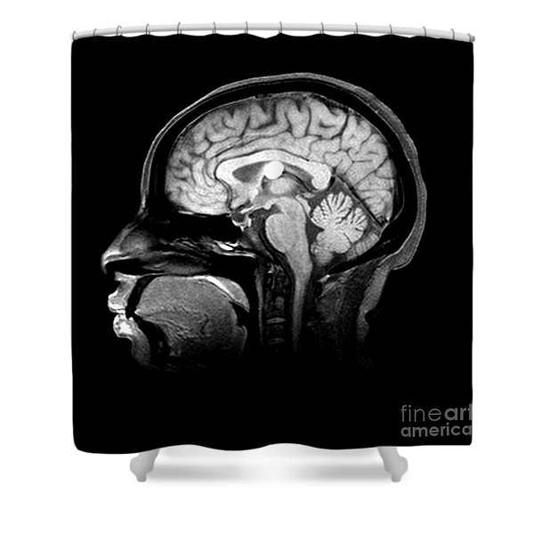 Mri Colloid Cyst Of Third Ventricle Shower Curtain