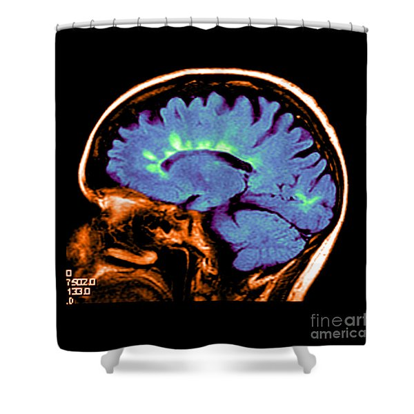 Mri Of Multiple Sclerosis Shower Curtain