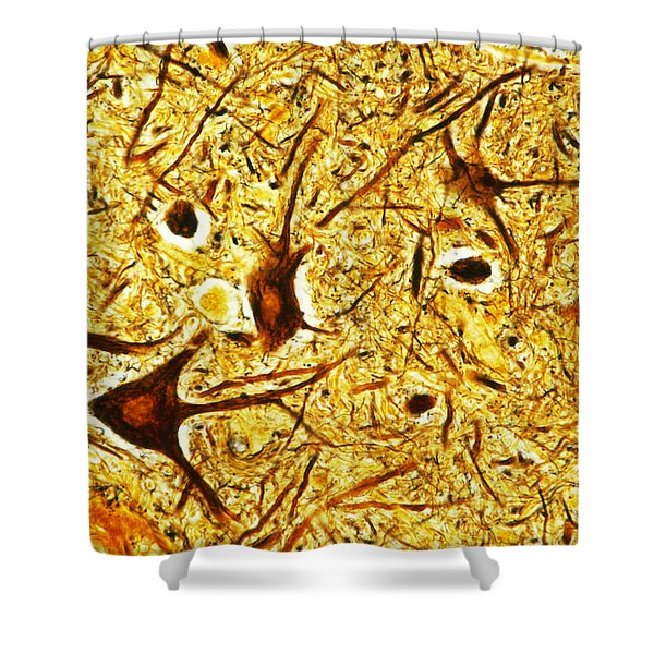Nerve Tissue Shower Curtain