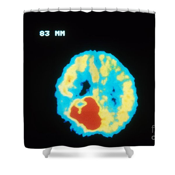 Pet Brain Scan, Malignant Tumor Shower Curtain