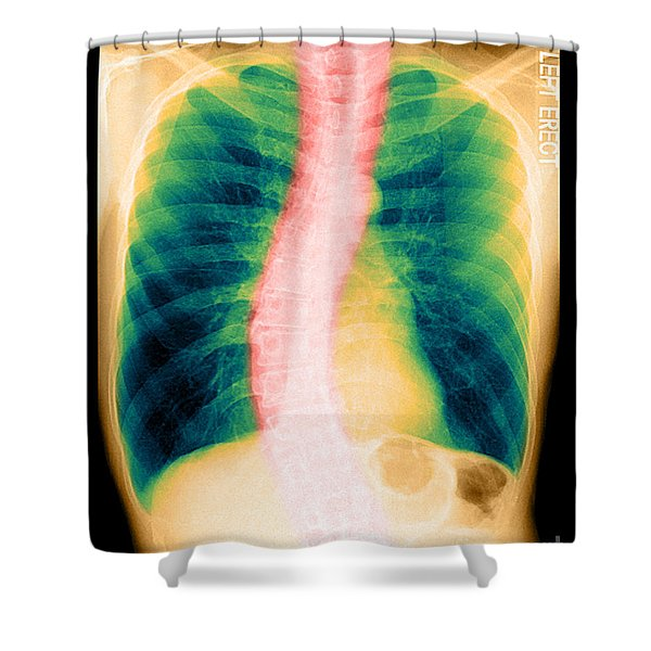 X-ray Of Copd And Scoliosis Shower Curtain