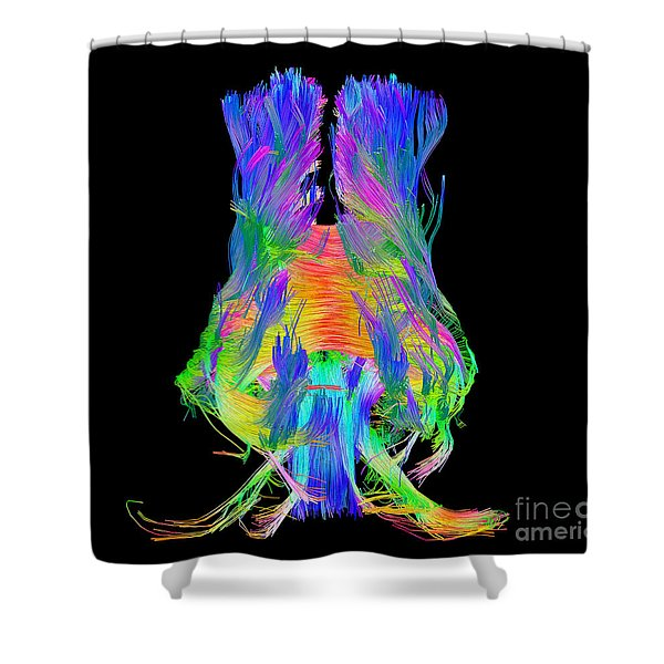 Brain Fiber Tracts, Dti Scan Shower Curtain