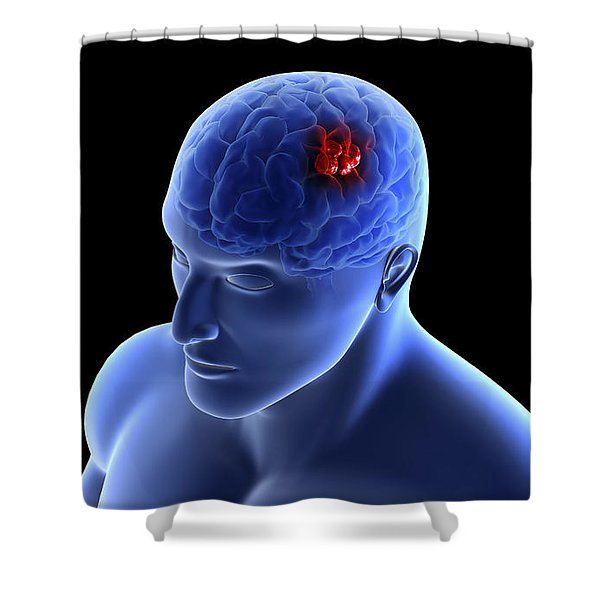 Conceptual Image Of A Tumor In Human Shower Curtain