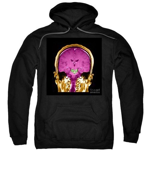 Mri Brainstem Cavernous Malformations Sweatshirt