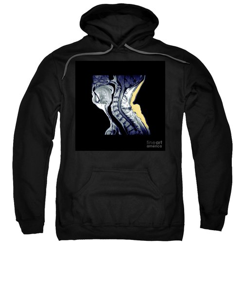 Active Demyelination Of Spinal Cord Sweatshirt