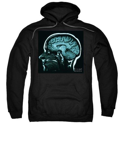 Mri Of Normal Brain Sweatshirt