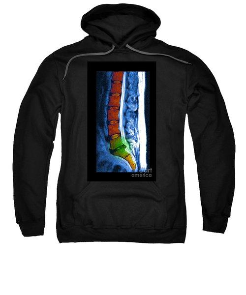 Herniated Disc Sweatshirt