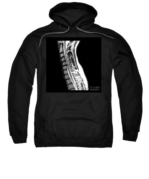 Herniated Disc In Cervical Spine Sweatshirt