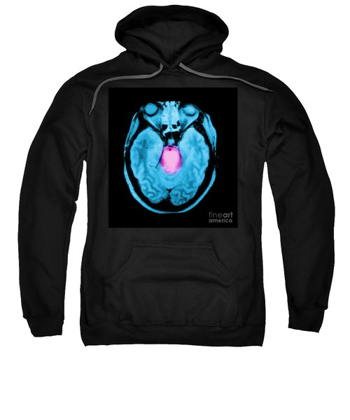 Mri Of Brainstem Glioma Sweatshirt