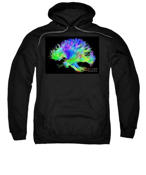 Fiber Tracts Of The Brain, Dti Sweatshirt