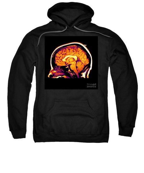 Mri Of Brain Sweatshirt