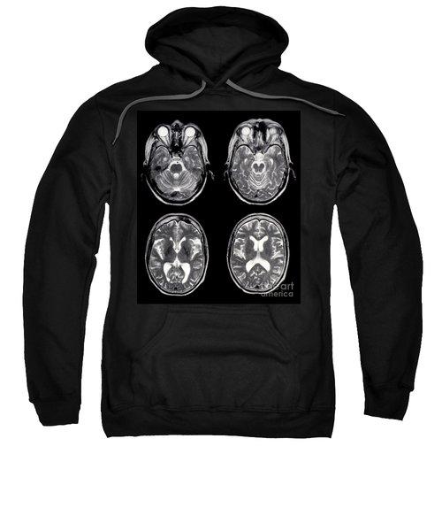 Normal Brain Of 65 Year Old Woman, Mri Sweatshirt