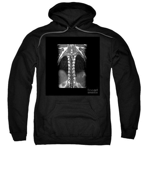Normal Mri Of Thoracic Spinal Cord Sweatshirt