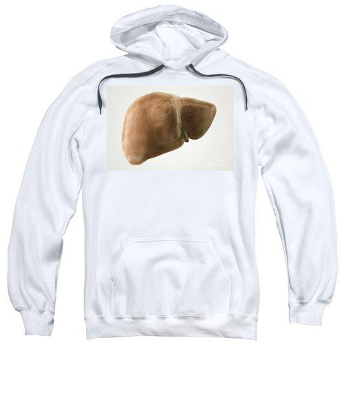 Fatty Liver Sweatshirt