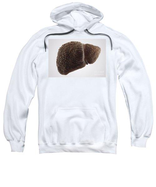 Liver Cirrhosis Sweatshirt