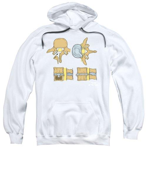 Illustration Of Spinal Disk Pathologies Sweatshirt