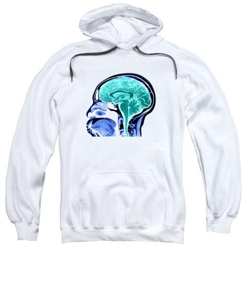 Sagittal View Of An Mri Of The Brain Sweatshirt
