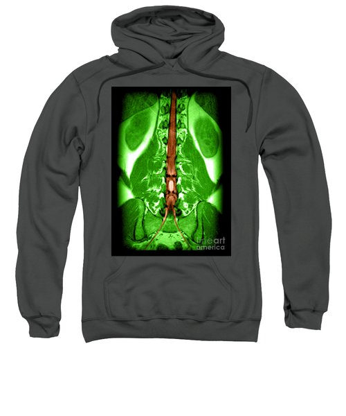 Mri Of Spinal Cord And Nerve Roots Sweatshirt