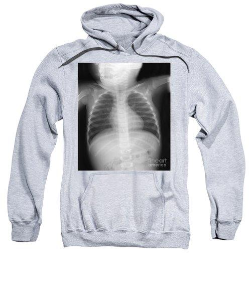 Swallowed Nail Sweatshirt by Ted Kinsman