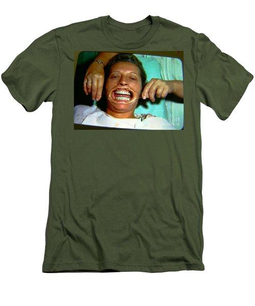 1960s Dental Exam Men's T-Shirt (Slim Fit) by Peter Gumaer Ogden