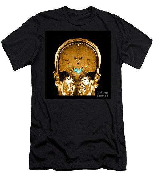 Mri Brainstem Cavernous Malformations Men's T-Shirt (Athletic Fit)