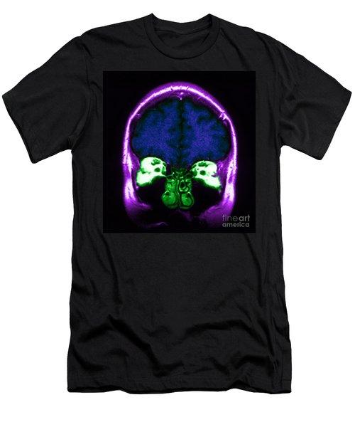 Mri Of Normal Brain Men's T-Shirt (Athletic Fit)