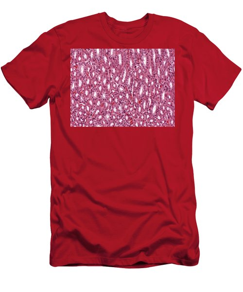 Outer Medulla Of The Kidney Lm Men's T-Shirt (Athletic Fit)