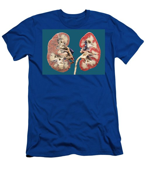 Human Kidney Sections Plastinated Men's T-Shirt (Athletic Fit)