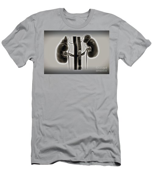Kidneys And Adrenal Glands Men's T-Shirt (Athletic Fit)