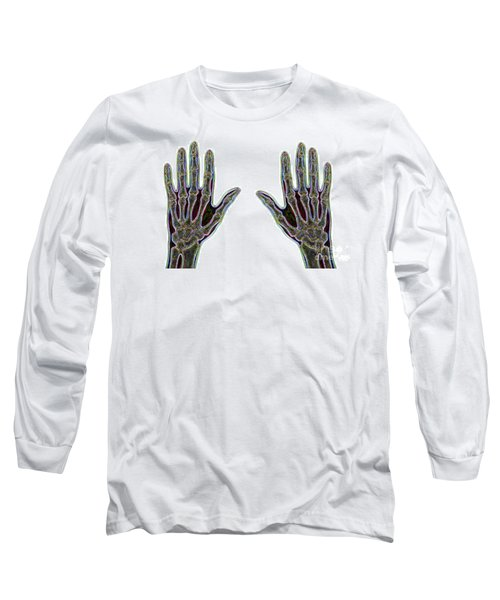 Carpal Tunnel Syndrome Long Sleeve T-Shirt
