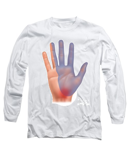 Carpal Tunnel Syndrome, Illustration Long Sleeve T-Shirt