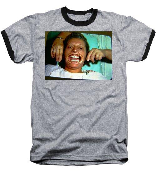 Baseball T-Shirt featuring the photograph 1960s Dental Exam by Peter Gumaer Ogden