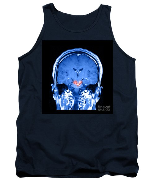 Mri Brainstem Cavernous Malformations Tank Top