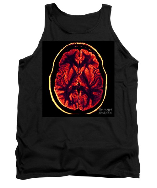 Mri Of Normal Brain Tank Top